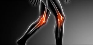 traumatología madrid | operación de rodilla