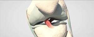 traumatología madrid | cirugía artroscópica de menisco