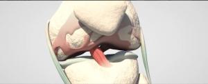 traumatología madrid | secuelas de menisco